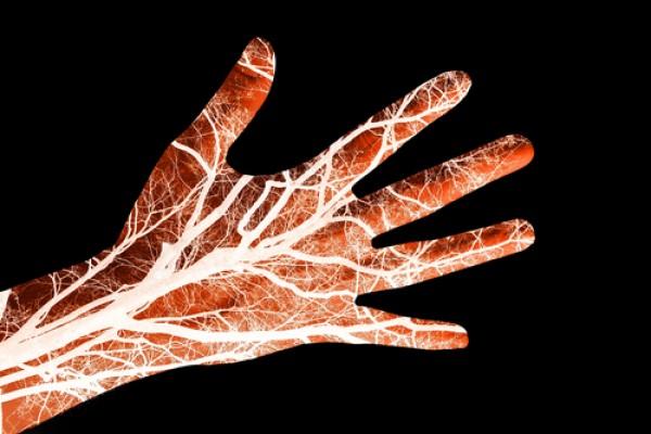 Maladies des artères, artérioles et capillaires