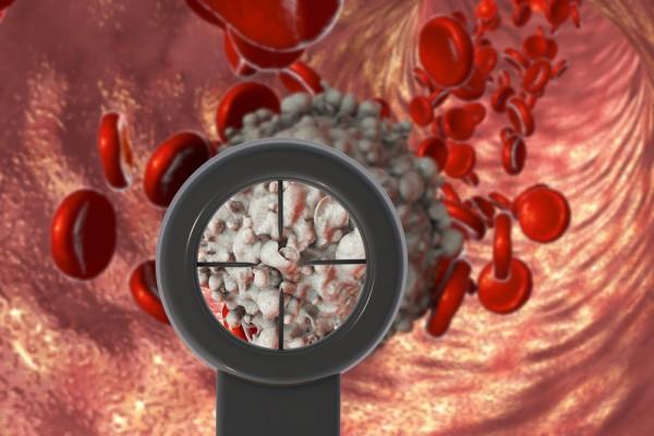 Tumoren van de hematopoëtische en lymfoïde weefsels