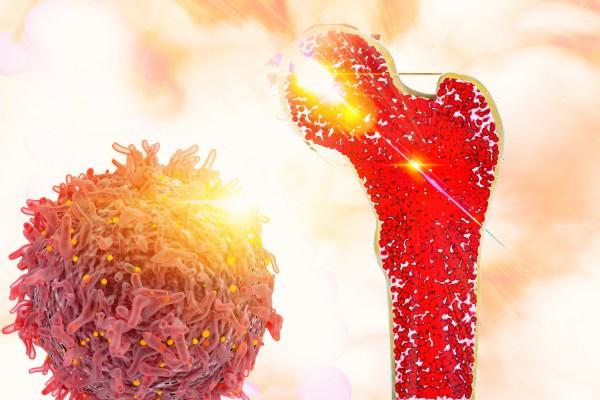 Tumoren van het bot
